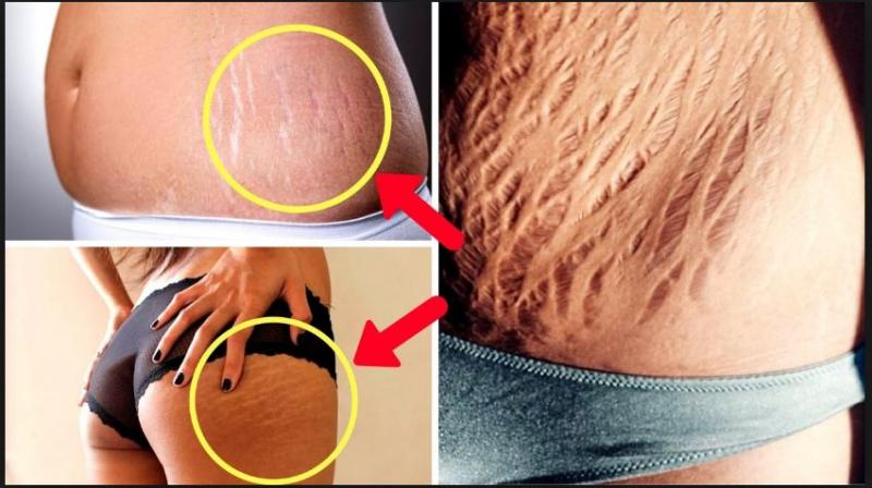 how to remove old stretch marks
