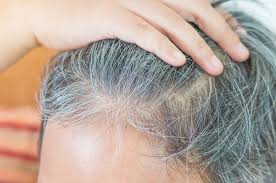 hair graying