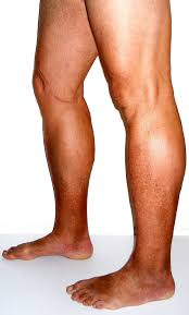 poor blood circulation in legs