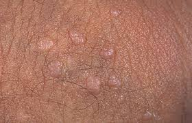 genital warts natural cure