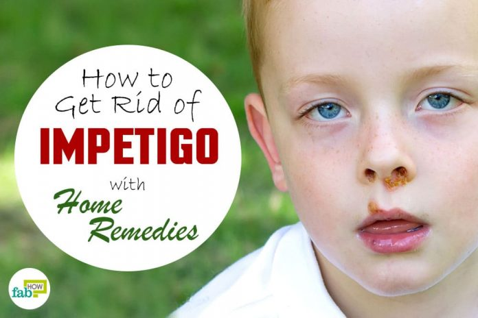 impetigo home remedy