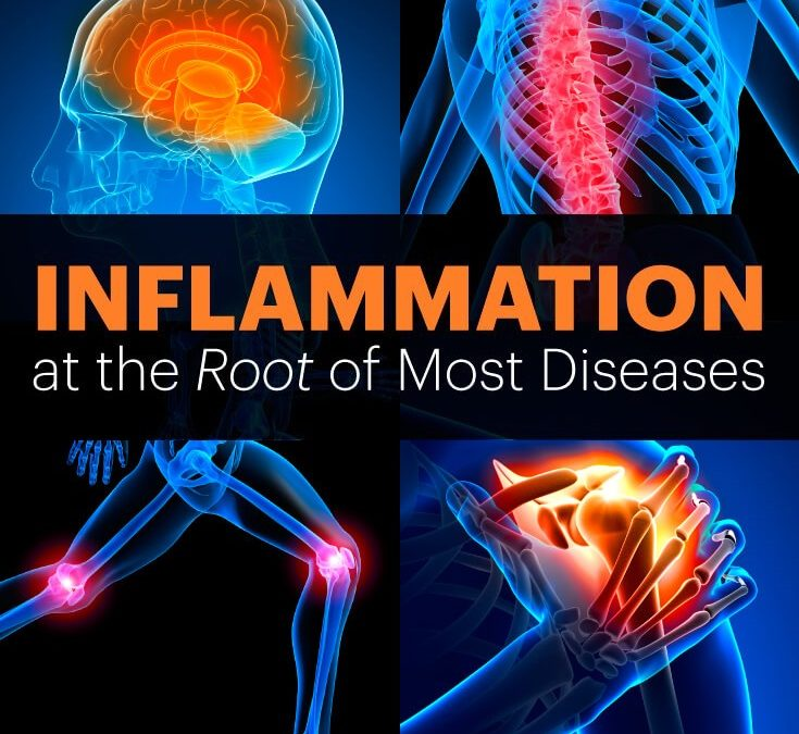 Inflammation Root of the many diseases
