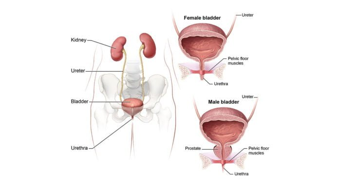 interstitial cystitis symptoms
