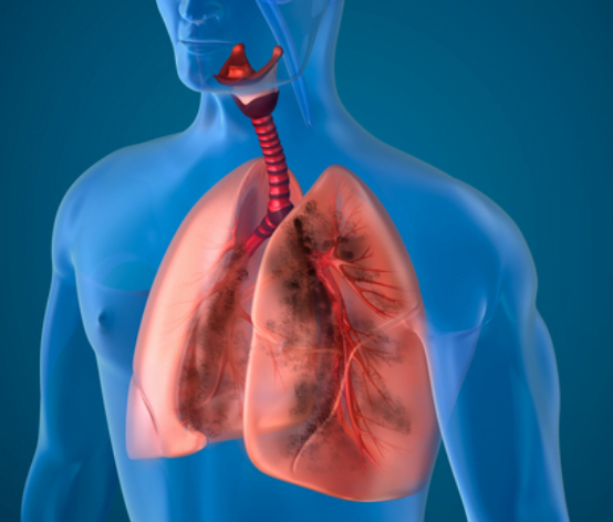 Natural Cures for Interstitial Lung Disease