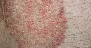 groin rash Archives - Home remedies and natural treatments