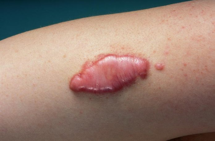 keloid scar infection