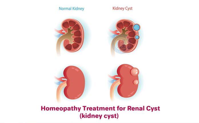 kidney cyst cancer