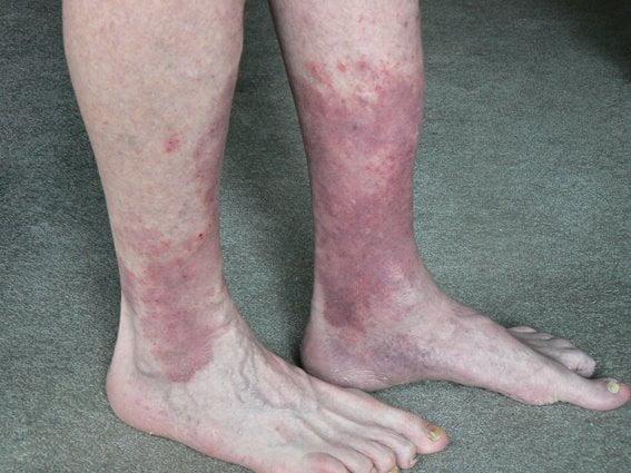 blood circulation in legs