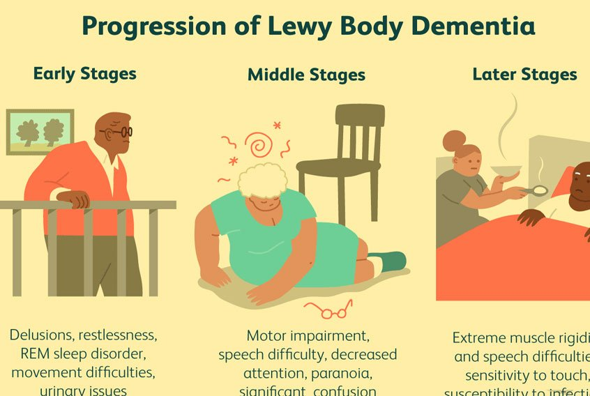 Home remedies for Dementia With Lewy Bodies