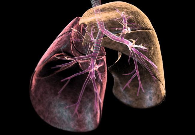lungs diseases