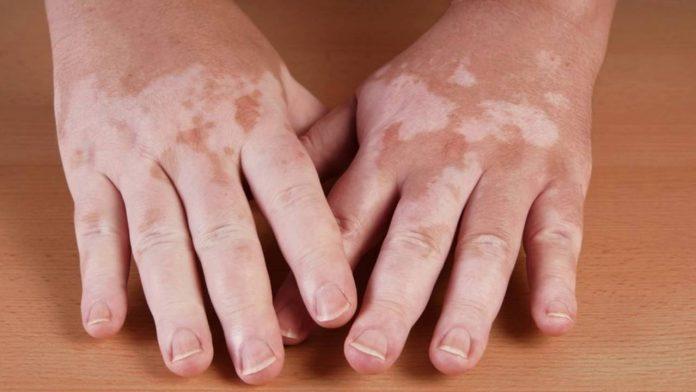 Leucoderma causes and symptoms