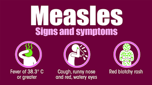 measles causes symptoms