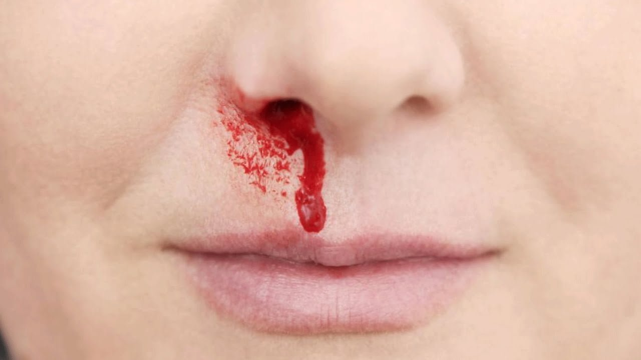 how to stop nose bleeding home remedies