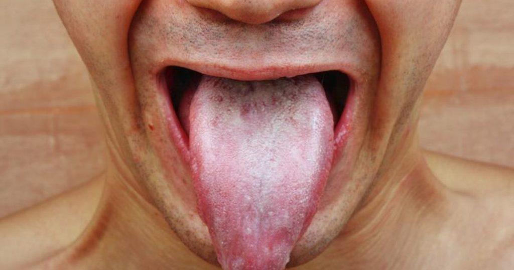 Thrush - Symptoms, Causes
