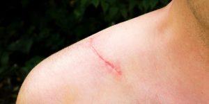 Scar &quot;width =&quot; 300 &quot;height =&quot; 150 &quot;/&gt; </p> <h2> <strong> Types de cicatrices </strong> </h2> <p> Une cicatrice peut être une excroissance anormale du tissu, une ligne fine ou un trou creusé sur la peau. Voici quelques types de cicatrices: </p> <!-- Quick Adsense WordPress Plugin: http://quickadsense.com/ --> <div style=