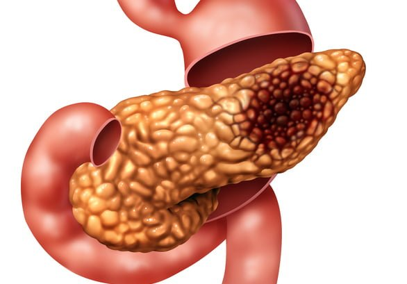 pancreatic cancer wiki