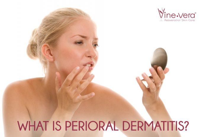 perioral dermatitis causes symptoms