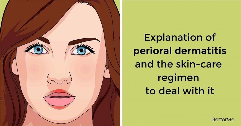 perioral dermatitis symptoms causes