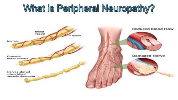 peripheral neuropathy definition