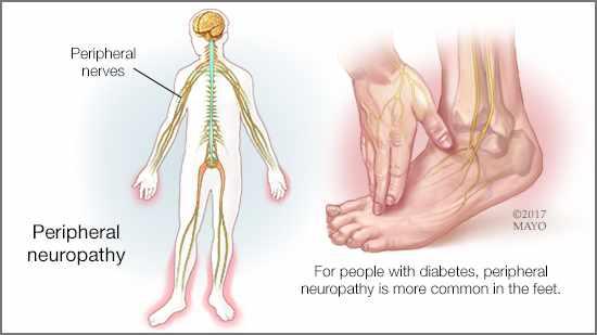 peripheral neuropathy diabetes