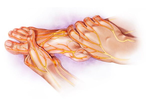 peripheral neuropathy prognosis