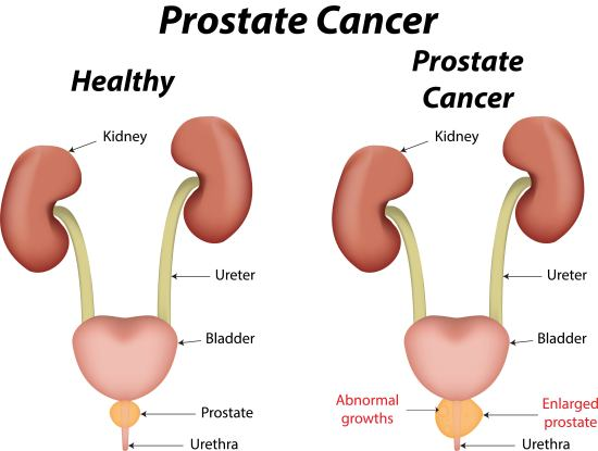 prostate cancer symptom