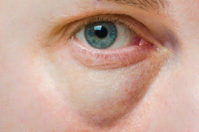 Natural cures for puffy eyes, puffy eyes home remedy