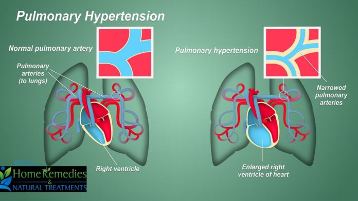 pulmonary hypertension recipes