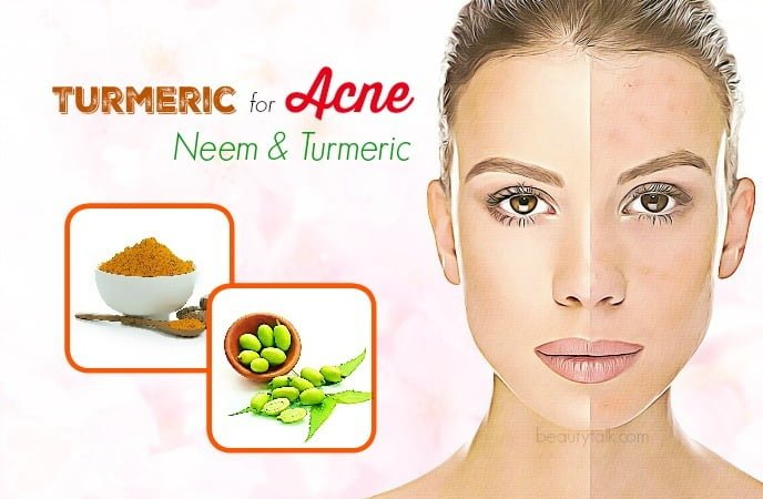 treating acne with turmeric