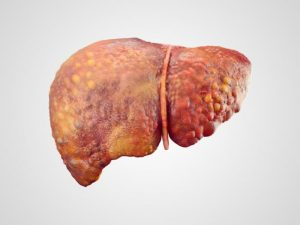 fatty liver home remedies