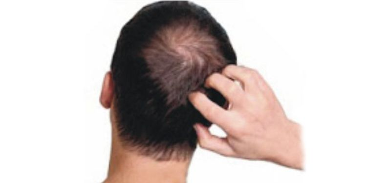 Scalp infection
