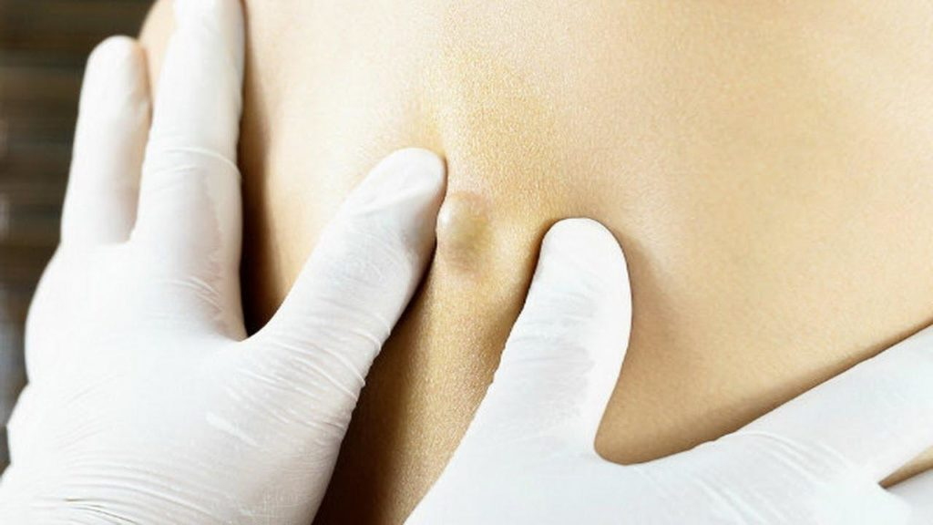 sebaceous cyst pictures