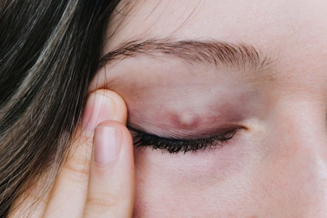 Chalazion symptoms causes
