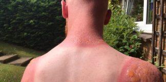 sunburn cures