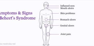 symptoms and signs of behcets syndrome