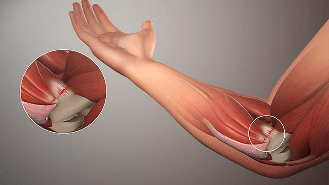 tendonitis shoulder