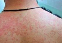 tinea versicolor treatment
