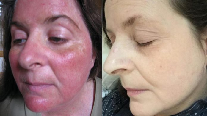 turmeric rosacea results