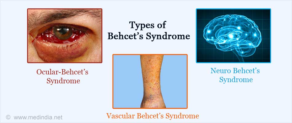 types of behcets syndrome