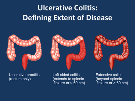 ulcerative colitis symptoms causes