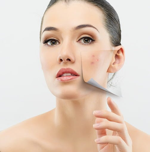 Home remedies for sebaceous hyperplasia