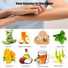 Natural Treatments for Food Intolerances