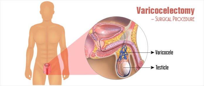 Treatments for Varicocele