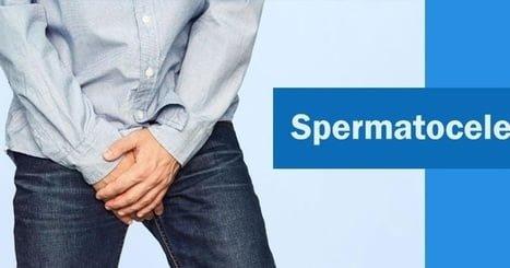 Natural treatment for spermatocele